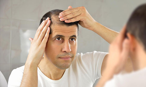 اینفوگرافی: ۵ درمان طبیعی ریزش موی سر